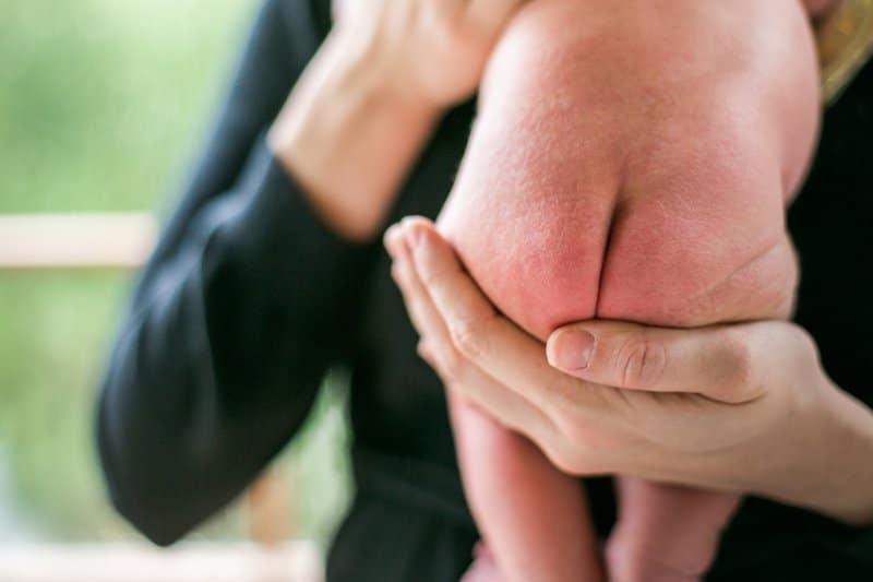 Hăm da ở trẻ sơ sinh