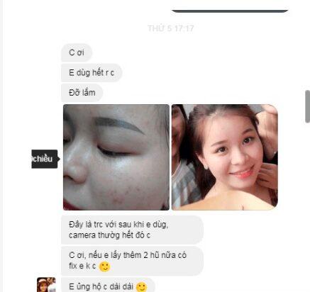 review kem trị mụn Hoa Đào