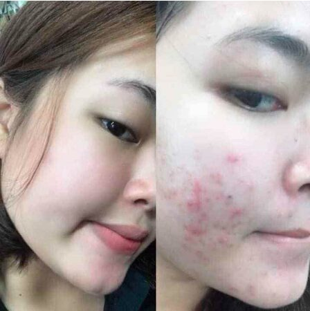 Hình ảnh trước và sau khi sử dụng trị mụn Pair được 1 tuần