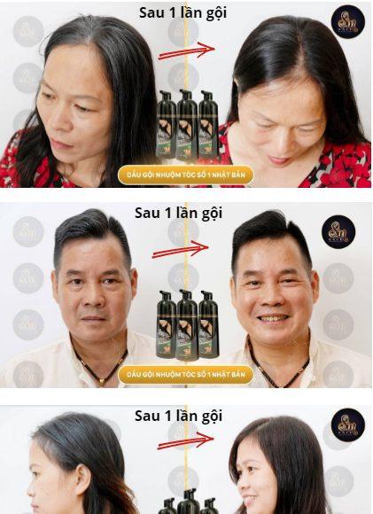 Hiệu quả làm đen tóc nhìn thấy rõ rệt chỉ sau 1 lần gội dầu gội phủ bạc Sin Hair