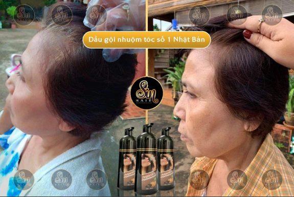 Trước và sau khi dùng dầu gội phủ bạc Sin Hair